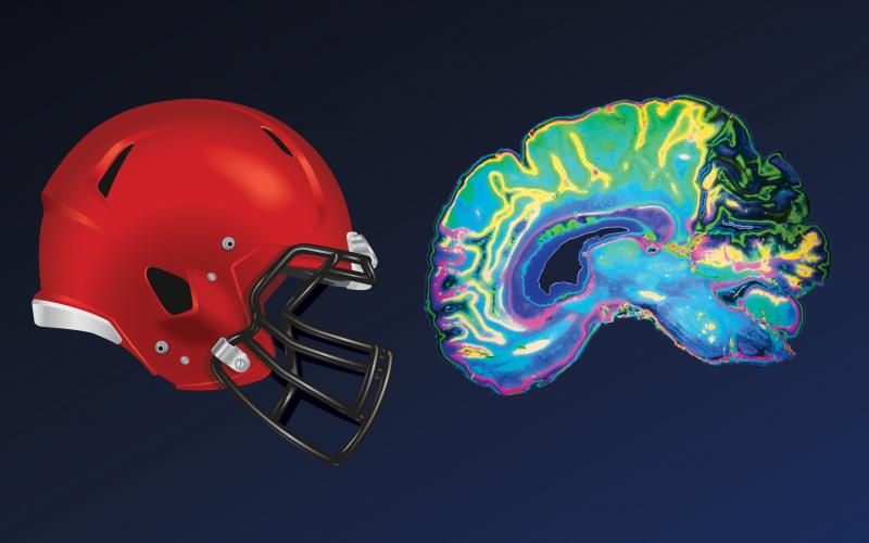 helmet and brain scan